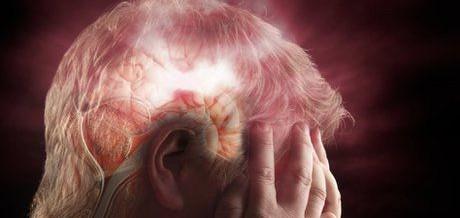 Пять признаков инсульта