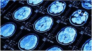 """Ученые доказали ошибочность утверждения того, что """"нервные клетки не восстанавливаются"""""""