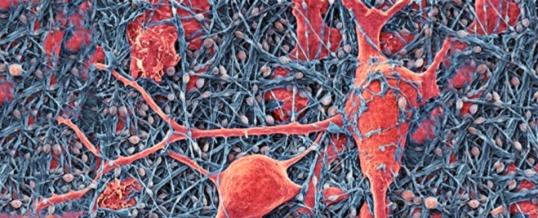 Нервные клетки восстанавливаются, и это возможно в любом возрасте!
