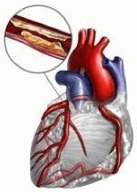 Атеросклероз - отложение холестериновых бляшек